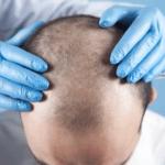 Пересадка волос – самая популярная процедура в Турции